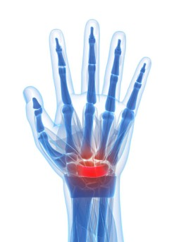 Endoscopic Carpal Tunnel Release by OrangeCountySurgeons