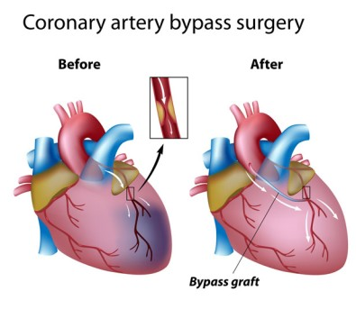 Heart Bypass Surgery by OrangeCountySurgeons