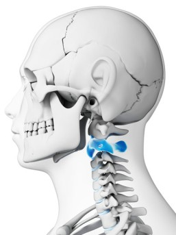 High Cervical Odontoid Excision by OrangeCountySurgeons