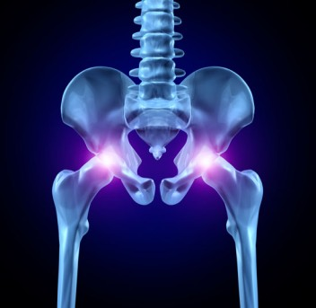 Partial Hip Replacement by OrangeCountySurgeons