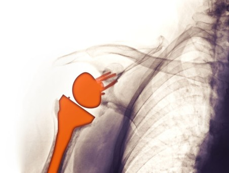 Revision Shoulder Surgery by OrangeCountySurgeons