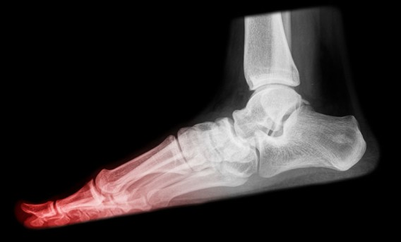 Toe Joint Replacement by OrangeCountySurgeons