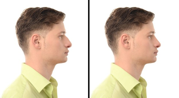 Indian Rhinoplasty by OrangeCountySurgeons