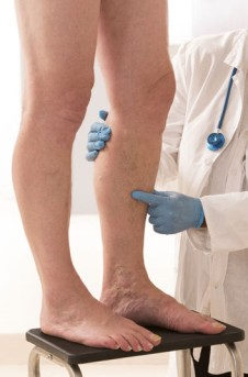 Immediate Limb Lengthening by OrangeCountySurgeons