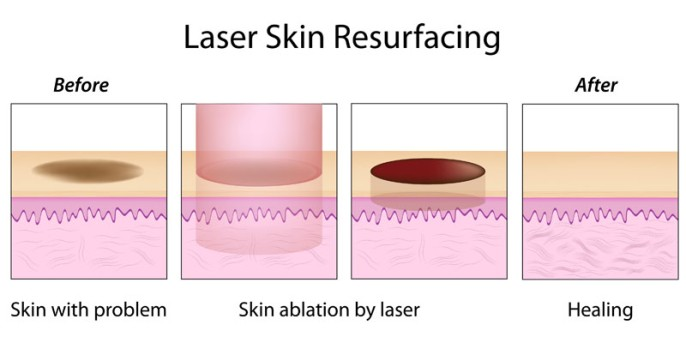 Erbium Laser Skin Resurfacing by OrangeCountySurgeons