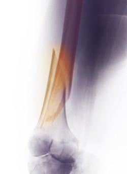 External Fixation of the Femur by OrangeCountySurgeons