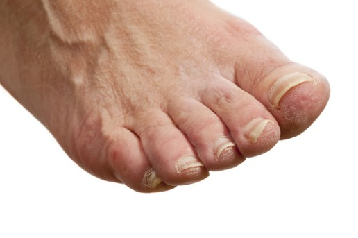 Foot Replantation by OrangeCountySurgeons