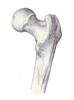 Hip Osteotomy by OrangeCountySurgeons