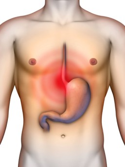 Gastroesophageal Reflux Surgery by OrangeCountySurgeons