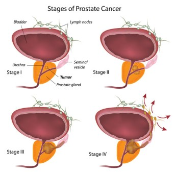 High Dose Rate Brachytherapy for Prostate Cancer by OrangeCountySurgeons