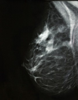 High Dose Rate Brachytherapy for Breast Cancer by OrangeCountySurgeons