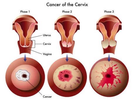 High Dose Rate Brachytherapy for Cervical Cancer by OrangeCountySurgeons