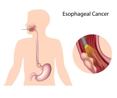 High Dose Rate Brachytherapy for Esophageal Cancer by OrangeCountySurgeons